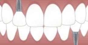 implant dentaire temoignage prix
